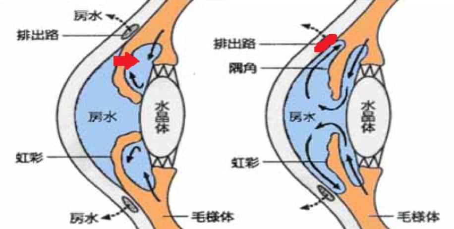 閉塞隅角緑内障(LI適応)と開放隅角緑内障(SLT適応)